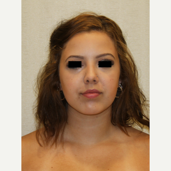 18-24 year old woman treated with Chin Implant after 3684803