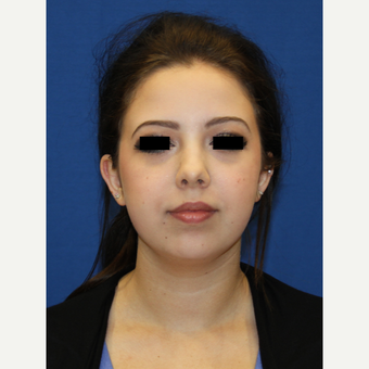 18-24 year old woman treated with Chin Implant before 3684803