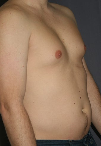 Liposuction of the male chest and abdomen before 243342