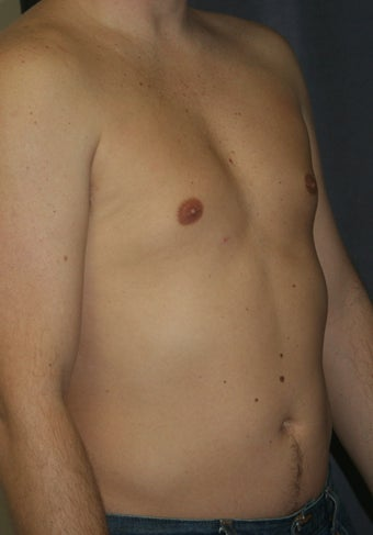 Liposuction of the male chest and abdomen after 243342