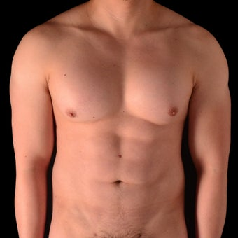 25-34 year old man treated with Liposculpture