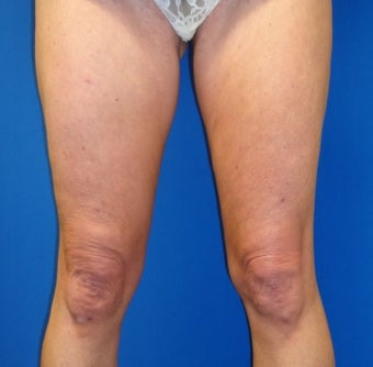 47 year old female treated for thigh skin laxity after 1398891
