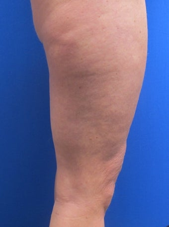 47 year old female treated for thigh skin laxity 1398891