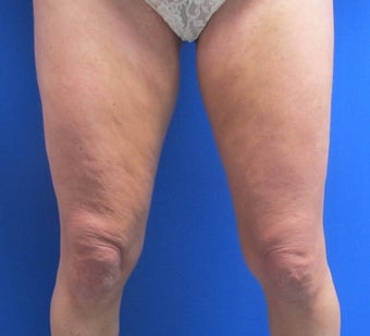 47 year old female treated for thigh skin laxity before 1398891