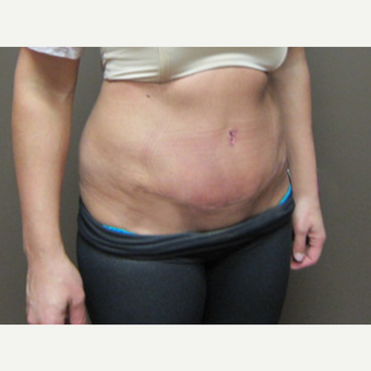 35-44 year old woman treated with Tummy Tuck after 3226485