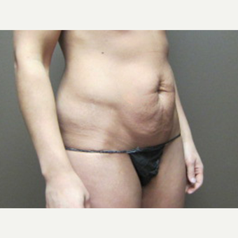 35-44 year old woman treated with Tummy Tuck before 3226485