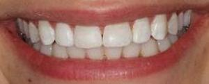 Bleaching and Fillings to Correct White Spots on Teeth after 913286