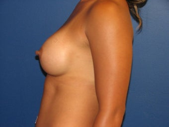 Breast Augmentation 575673