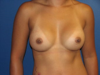 Breast Augmentation after 575673