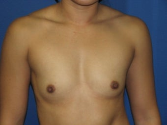 Breast Augmentation before 575673