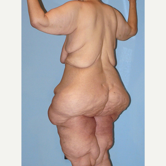 50 year old woman treated with Extreme Makeover Body Lift before 3629123