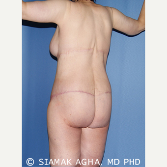 50 year old woman treated with Extreme Makeover Body Lift after 3629123