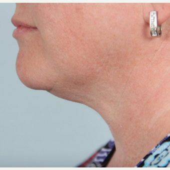 35-44 year old woman treated with two treatments of Kybella after 2712081