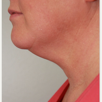 35-44 year old woman treated with two treatments of Kybella before 2712081