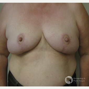 65-74 year old woman treated with Breast Lift after 3325450