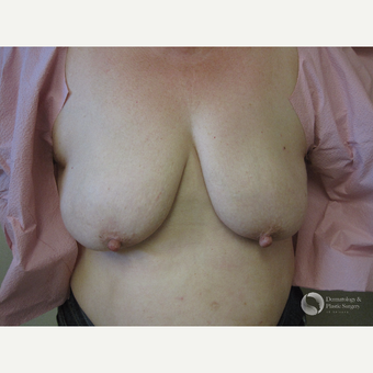 65-74 year old woman treated with Breast Lift before 3325450