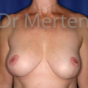 Breast Reduction after 3681303