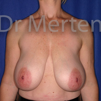 Breast Reduction before 3681303