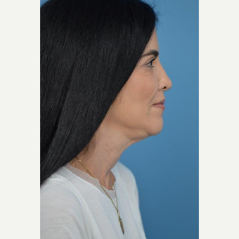 45-54 year old woman treated with Ultherapy before 3732314