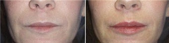 Juvederm for Lip Augmentation before 71107