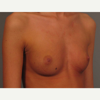 18-24 year old woman treated with Endo-Axillary Breast Augmentation before 3464981