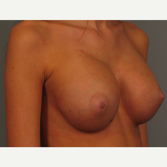 18-24 year old woman treated with Endo-Axillary Breast Augmentation after 3464981