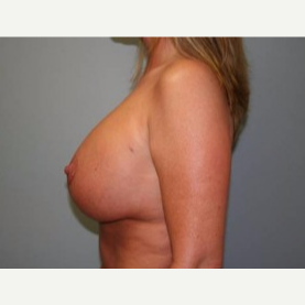 35-44 year old woman treated with Breast Lift after 3339133