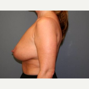 35-44 year old woman treated with Breast Lift before 3339133