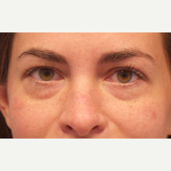 25-34 year old woman treated with Restylane before 3675107