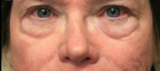 65-74 year old woman treated with Eyelid Surgery before 3046885