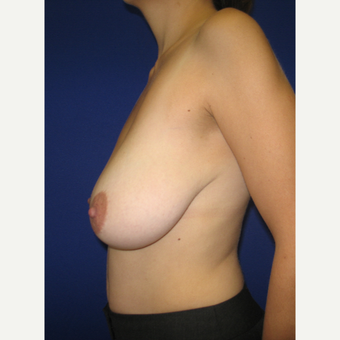 18-24 year old woman treated with Breast Lift before 3322072