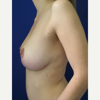 18-24 year old woman treated with Breast Lift after 3322072