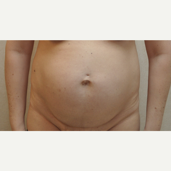 45-54 year old woman treated with Tummy Tuck before 3102861