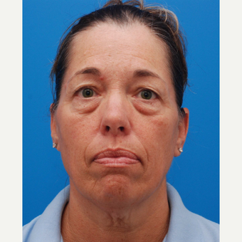 45-54 year old woman treated with Eyelid Surgery before 3003313
