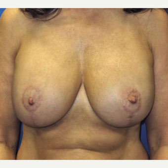 45-54 year old woman treated with Breast Lift with Implants after 3669581