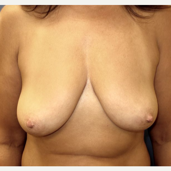 45-54 year old woman treated with Breast Lift with Implants before 3669581