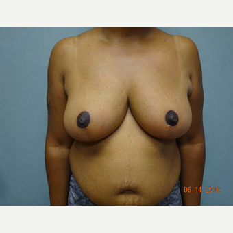 35-44 year old woman treated with Breast Reduction after 3823247