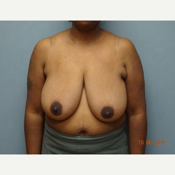 35-44 year old woman treated with Breast Reduction before 3823247