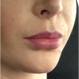 18-24 year old woman treated with Lip Augmentation after 1748778