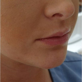 18-24 year old woman treated with Lip Augmentation before 1748778