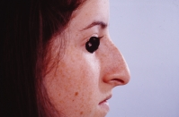 Rhinoplasty before 3446454