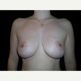 20 year old woman treated with Breast Reduction after 3839903