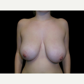 20 year old woman treated with Breast Reduction before 3839903