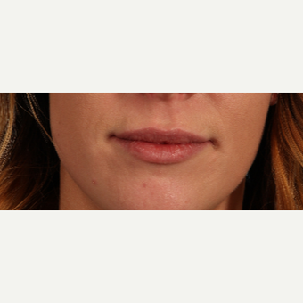 25-34 year old woman treated with Lip Augmentation after 3819242