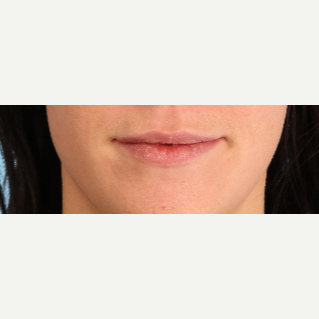 25-34 year old woman treated with Lip Augmentation before 3819242
