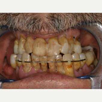 65-74 year old man treated with All-on-4 Dental Implants before 2180115