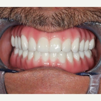 65-74 year old man treated with All-on-4 Dental Implants after 2180115