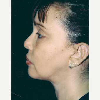 35-44 year old woman treated with Facelift after 3271705