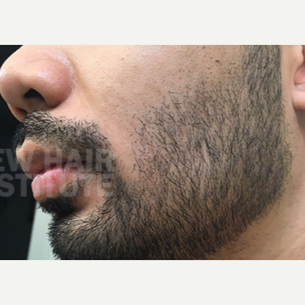 NONCOMP 25-34 year old man treated with FUE Hair Transplant Beard/ Facial Hair Transplant after 3108134