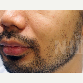 NONCOMP 25-34 year old man treated with FUE Hair Transplant Beard/ Facial Hair Transplant before 3108134